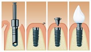 dr kuhoff zahnarzt d sseldorf oberkassel implantate gelten als eleganteste m glichkeit. Black Bedroom Furniture Sets. Home Design Ideas